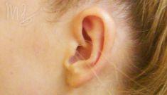 Ear surgery (Otoplasty) - Photo before - doc. MUDr. M. Boháč PhD.