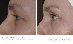 Non Surgical Lift - Photo before - Bieńkowscy Clinic®