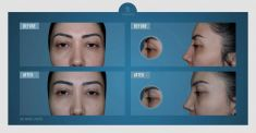 Dr. Op. Serhat Tuncer MD - Photo before - Dr. Op. Serhat Tuncer MD