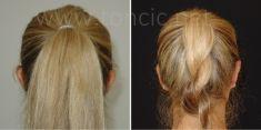 Ear surgery (Otoplasty) - Photo before - Poliklinika za estetsku kirurgiju Dr. Tončić