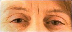 Dermal fillers - Photo before - Klinika GHC Praha