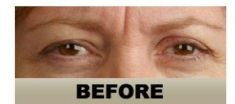Dermal fillers - Photo before