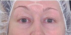Eyelid surgery (Blepharoplasty) - Photo before - Mediestetik, skupina klinik