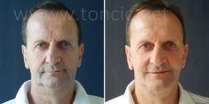 Poliklinika za estetsku kirurgiju Dr. Tončić - Photo before - Poliklinika za estetsku kirurgiju Dr. Tončić
