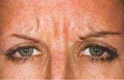 Klinika Laser Esthetic - Photo before - Klinika Laser Esthetic