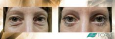 Eyelid surgery (Blepharoplasty) - Photo before - MUDr. Petr Jan Vašek