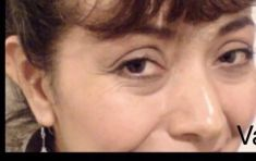 Botulinum toxin - Wrinkle Removal - Photo before - Dr. Jose Luis Valero S.
