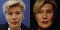 Facelift - Photo before - Poliklinika za estetsku kirurgiju Dr. Tončić