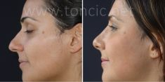 Rhinoplasty (Nose Job) - Photo before - Poliklinika za estetsku kirurgiju Dr. Tončić