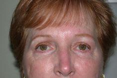 Diana Breister Ghosh, M.D. - Photo before - Diana Breister Ghosh, M.D.