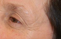 Laser skin tag removal - Photo before - lek. med. Jacek Ściborowicz - MediVita
