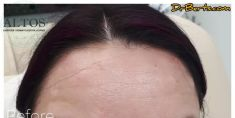 Botulinum toxin - Wrinkle Removal - Photo before - Dr Alberto Leguina-Ruzzi MD PhD