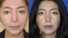 Lip Lift - Photo before - Dr Osuch Clinic