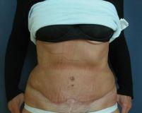 Abdominoplasty (Tummy Tucks) - Photo before - MUDr. Karel Urban