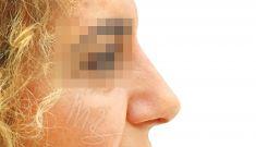 Rhinoplasty (Nose Job) - Photo before - doc. MUDr. M. Boháč PhD.