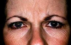 Botulinum toxin - Wrinkle Removal - Photo before - Dr Jose Zayas MD