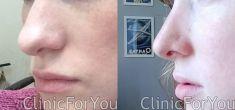 Rhinoplasty (Nose Job) - Photo before - ClinicForYou