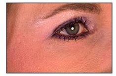 Botulinum toxin - Wrinkle Removal - Photo before - Dr. med. Nikolaus Linde