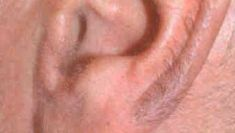 Laser hair removal - Photo before - Klinika Laser Esthetic