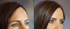 Tracey Bell Clinic - Photo before - Tracey Bell Clinic