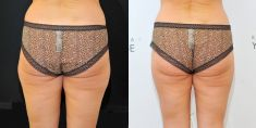 Cryolipolysis - Photo before - YES VISAGE Aesthetic medicine and plastic surgery clinic