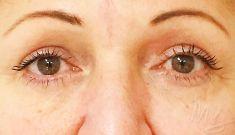 Eyelid surgery (Blepharoplasty) - Photo before - doc. MUDr. M. Boháč PhD.
