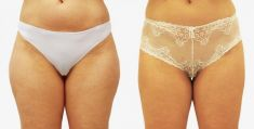 Ultrasonic liposuction - Photo before - Prim. MUDr. Pavel Horyna - MEDICOM Clinic