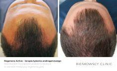 Hair Transplant - Photo before - Dr n. med. Marcin Bieńkowski