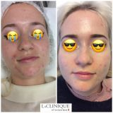 Photodynamic therapy - Photo before