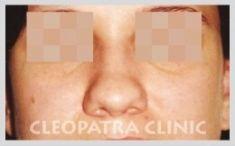 Rhinoplasty (Nose Job) - Photo before - MUDr. Taisir Zakout