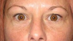 Artisan Cosmetic Surgery - Photo before - Artisan Cosmetic Surgery