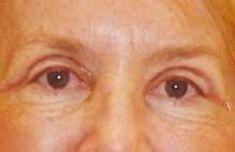 MUDr. Michal Puls CSc. - MEDICOM Clinic - Photo before - MUDr. Michal Puls CSc. - MEDICOM Clinic