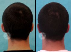 Ear surgery (Otoplasty) - Photo before - Dr. Guy Watts