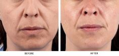 Dermal fillers - Photo before - Laserová dermatologická klinika ALTOS