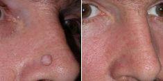 Mole removal - Photo before - Brandeis Clinic by Lucie Kalinová
