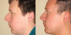 Rhinoplasty (Nose Job) - Photo before - Anthony Geroulis M.D.