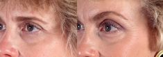 Brow lift - Photo before