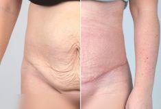 Abdominoplasty (Tummy Tucks) - Photo before - PRIMED Clinic