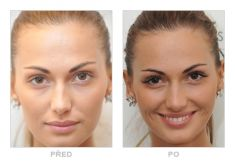 Lash extensions - Photo before - YES VISAGE Aesthetic medicine and plastic surgery clinic