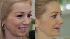 Chin Surgery - Photo before - Perfect Clinic - centrum estetické medicíny