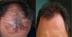 Hair Transplant - Photo before - Mandala Beauty Clinic