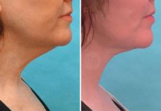 Neck lift - Photo before - Dr. Guy Watts