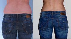 Tumescent liposuction - Photo before - MUDr. Patrik Paulis