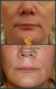 Liquid facelift - Corectarea lipsei de volum facial cu acid hialuronic (marire pometi, umplere santuri nazolabiale si santuri lacrimale).