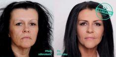 Feather face-lift APTOS - Photo before - Brandeis Clinic by Lucie Kalinová