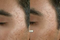 Radiofrequency Rejuvenation (Aluma, accent, TriPollar, Spa RF device, Re-Age) - Photo before - Klinika Laser Esthetic