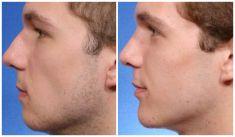 Chin Surgery - Photo before - Mandala Beauty Clinic