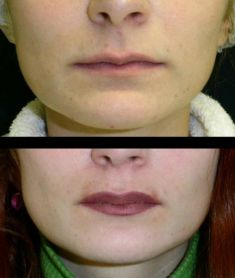 Lip augmentation - cheiloplasty - Photo before - MUDr. Libor Kment