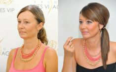 Feather face-lift APTOS - Photo before - YES VISAGE Aesthetic medicine and plastic surgery clinic