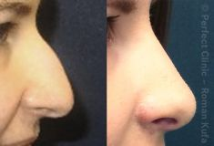 Rhinoplasty (Nose Job) - Photo before - Perfect Clinic - centrum estetické medicíny